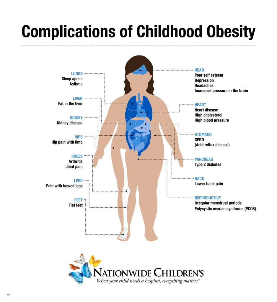 Childhood Obestity Inforgraphic