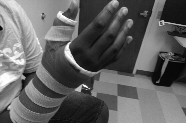 Broken Fingers  Why They Need Special Treatment and Care 0e16060b6
