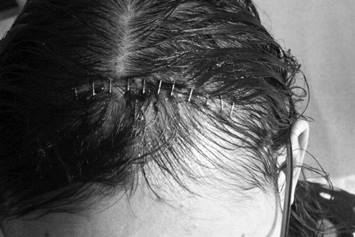 stitched on top of head