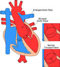 Coarctation of the Aorta Diagnosis