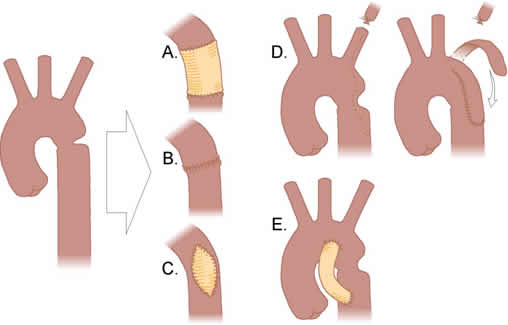 Coarctation of the Aorta Treatment