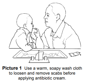 How to loosen a scab with soapy warm water.
