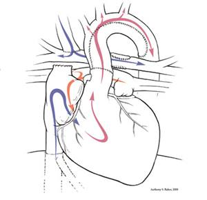 Hypoplastic Left Heart Syndrome Comprehensive Stage 2