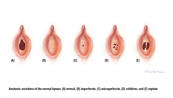 Hymen Variations Group
