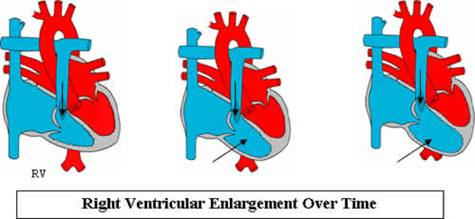 right ventricular enlargement over time