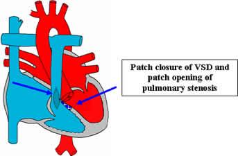 Tetralogy of Fallot on retinopathy of prematurity pathophysiology, ankylosing spondylitis pathophysiology, bronchiolitis pathophysiology, pleural effusion pathophysiology, unstable angina pathophysiology, mitral valve stenosis pathophysiology, cushing's syndrome pathophysiology, meningitis pathophysiology, nephrotic syndrome pathophysiology, aspiration pneumonia pathophysiology, cardiac tamponade pathophysiology, typhoid fever pathophysiology, sarcoidosis pathophysiology, atrial flutter pathophysiology, umbilical hernia pathophysiology, alzheimer's disease pathophysiology, chronic obstructive pulmonary disease pathophysiology, mitral valve regurgitation pathophysiology, aortic stenosis pathophysiology, cardiogenic shock pathophysiology,