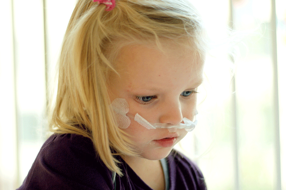 Little girl receiving oxygen therapy