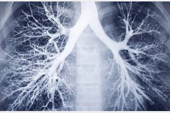 X-ray of lung