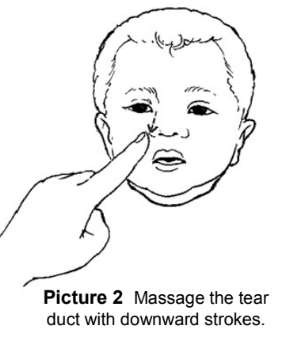Tear Duct Massage