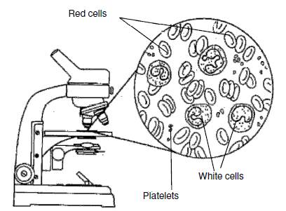 Blood cells and platelets under a microscope