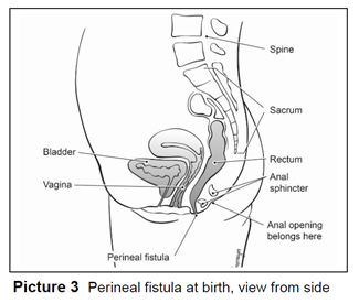 Perineal fistula at birth, view from side