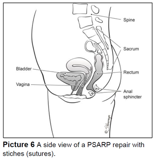 A side view of a PSARP repair with stiches (sutures).