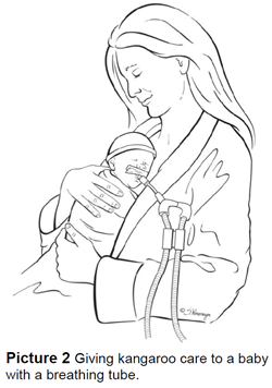 Giving kangaroo care to a baby with a breathing tube.