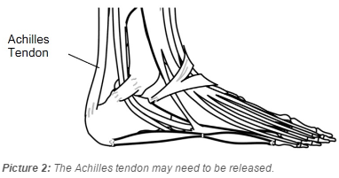 the Achilles tendon on the back of the ankle