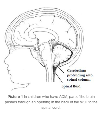 diagram of brain with ACM