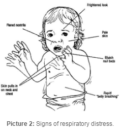 Signs of Respiratory Distress