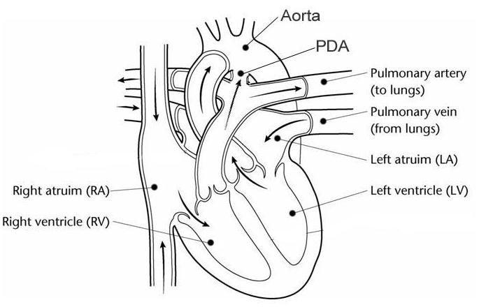 A heart with the patent ductus arteriosus still open