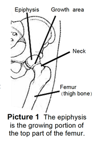 The epiphysis is the growing portion of the top part of the femur