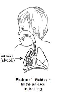 Il fluido può riempire le sacche d'aria del polmone
