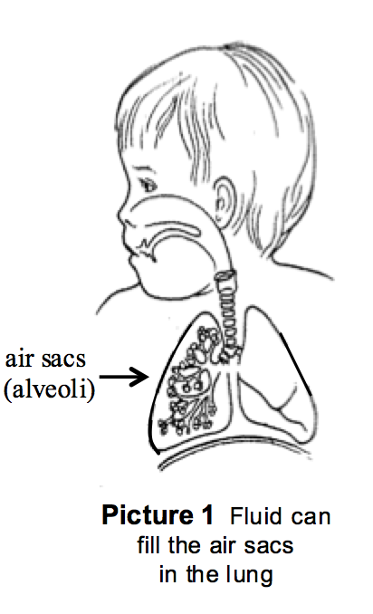 Fluid can fill the air sacs in the lung