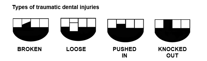 Types of Dental Injuries