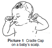 cradle cap on baby's scalp