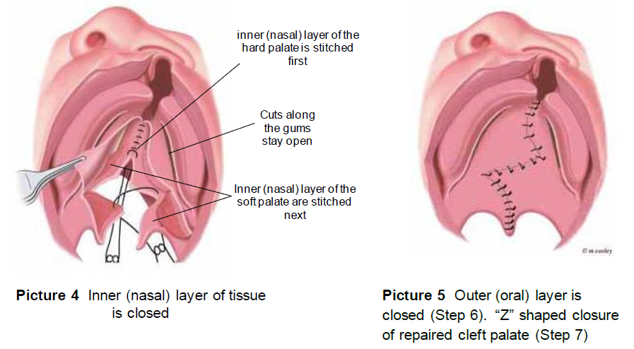 Cleft Palate Repair The Surgery