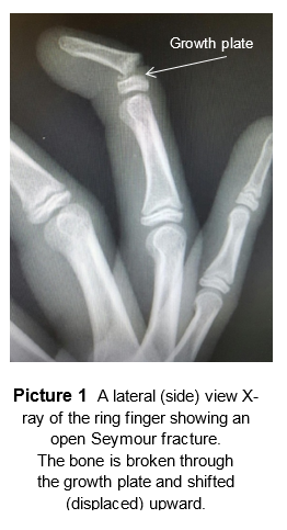 x ray of seymour fracture