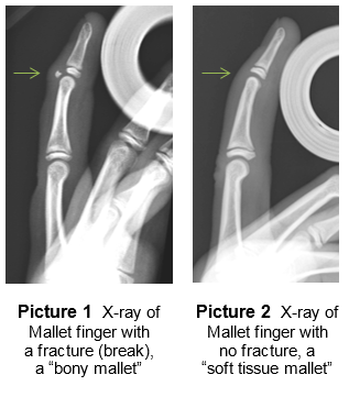 x ray of mallet finger with no fracture and one with no fracture