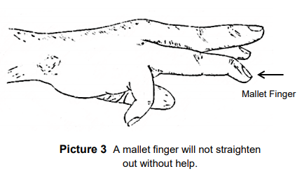 finger that cannot straighten without help