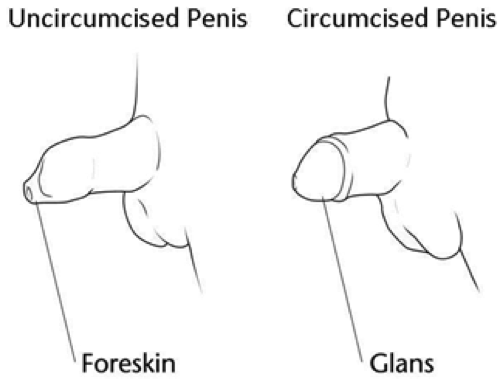 a circumciced and uncircumciced penis