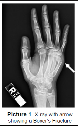 X-ray with arrow showing Boxer's Fracture