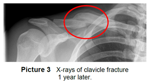 X ray of clavicle fracture