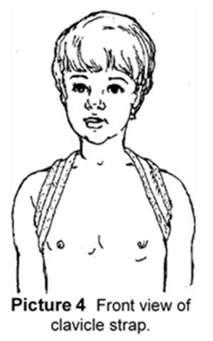 Front view of clavicle strap