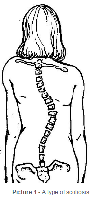 the curve of the spine when someone has scoliosis