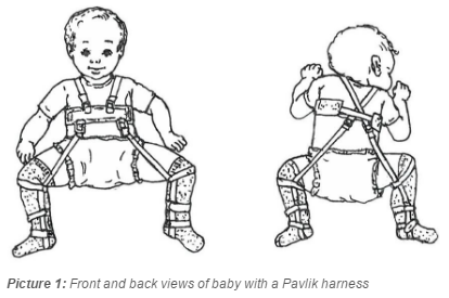 Front and back views of baby with a Pavlik harness