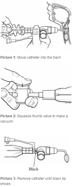 Move catheter into trach, squeeze thumb valve to make vacuum, remove catheter until black tip shows