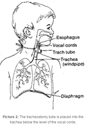 where the vocal chords and trachea are located
