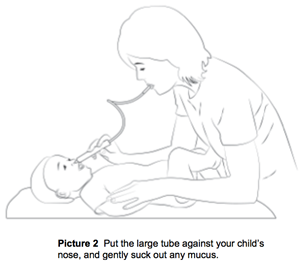 suctioning your child's nose