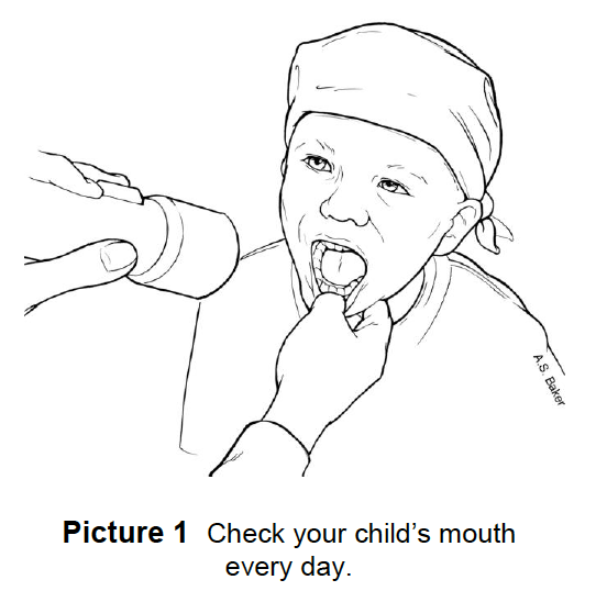 checking a child's mouth with a flashlight