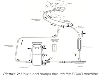 diagram of how bloods pumps through an ECMO machine