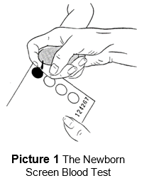 the newborn screen blood test