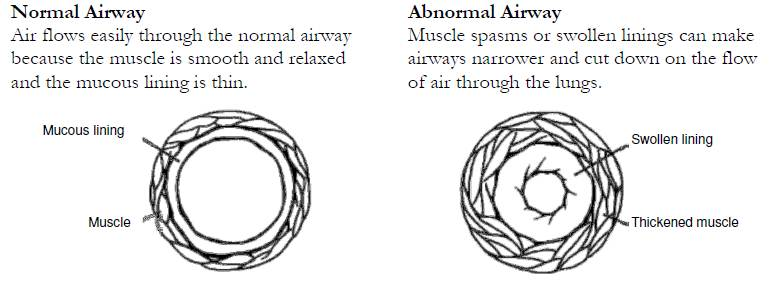 diagram of normal and abnormal airways