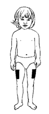 Child with Hydrocortisone injection on upper thighs