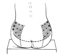 using the hips as an injection site