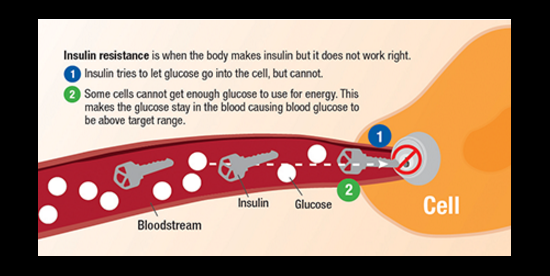 type two diabetes depicted as the cell lock not allowing the insulin key to unlock it for the glucose to enter