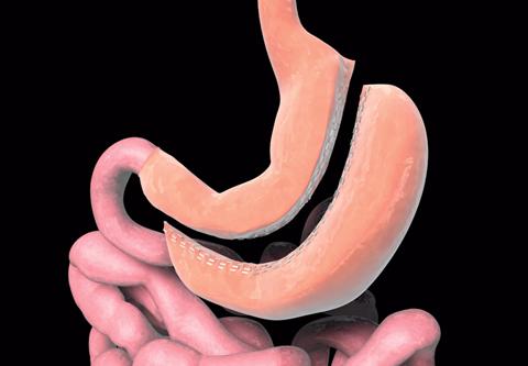 Gastric Sleeve Surgery Sleeve Gastrectomy